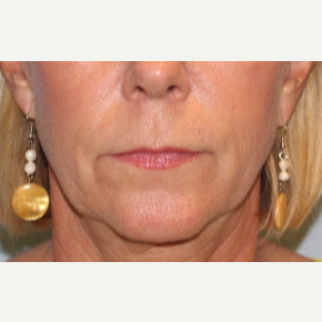 55-64 year old woman treated with Lip Lift before 3570822