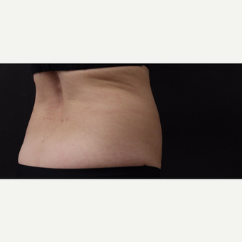 55 year old woman treated with CoolSculpting before 3220725