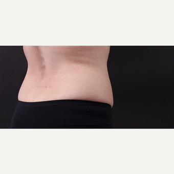 55 year old woman treated with CoolSculpting after 3220725