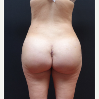 25-34 year old woman treated with Butt Implants after 3629815