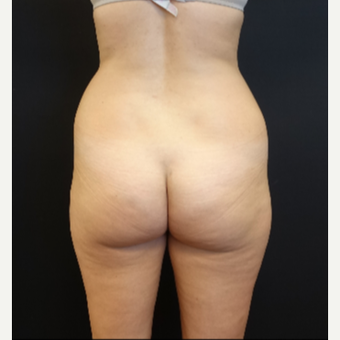 25-34 year old woman treated with Butt Implants before 3629815