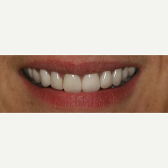 45-54 year old woman treated with Porcelain Veneers after 3087520