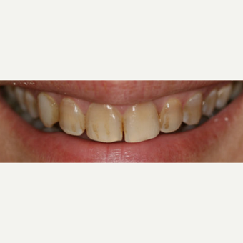 45-54 year old woman treated with Porcelain Veneers before 3087520