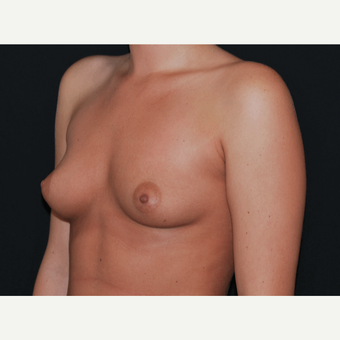 18-24 year old woman treated with Breast Implants before 3650741