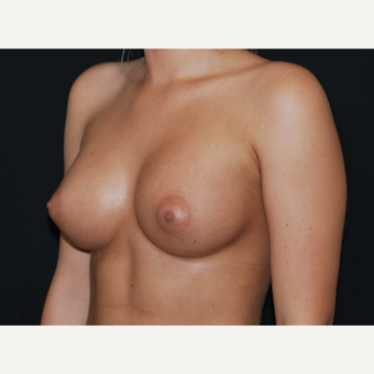 18-24 year old woman treated with Breast Implants after 3650741