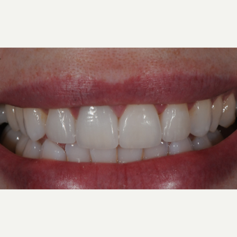 Porcelain Veneers and Crown after 3663453