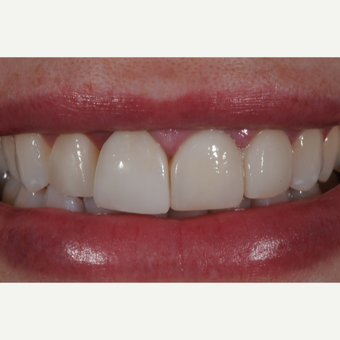 Porcelain Veneers and Crown before 3663453