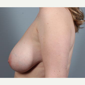 25-34 year old woman with BRCA+ gene treated with prophylactic Breast Reconstruction before 3344844