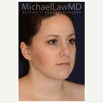 25-34 year old woman treated with Lower Face Lift after 3383301