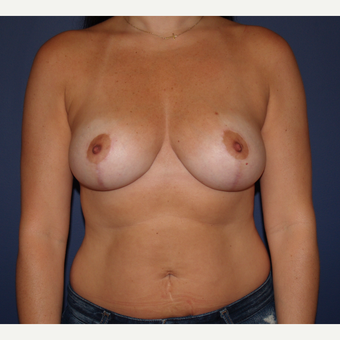35-44 year old woman treated with Breast Reduction after 3287438