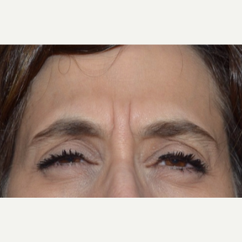 45-54 year old woman treated with Botox before 3520258