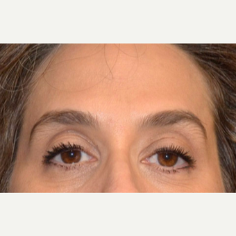 45-54 year old woman treated with Botox after 3520258