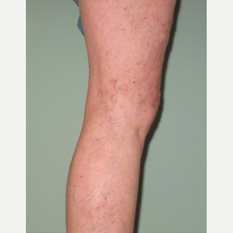 55-64 year old woman treated with Sclerotherapy after 2533169