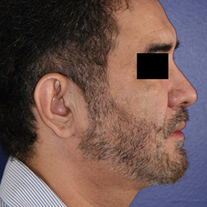 46 year old man treated with Chin Implant after 3710610