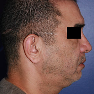 46 year old man treated with Chin Implant before 3710610