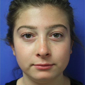 18-24 year old woman treated with Rhinoplasty after 3400347