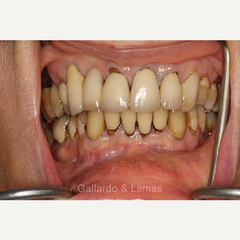 45-54 year old woman treated with All-on-4 Dental Implants before 3258937