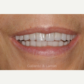 45-54 year old woman treated with All-on-4 Dental Implants after 3258937