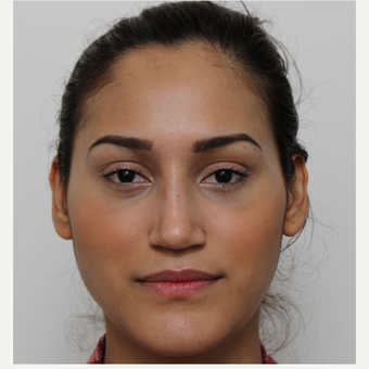 25-34 year old woman treated with Rhinoplasty after 3372311
