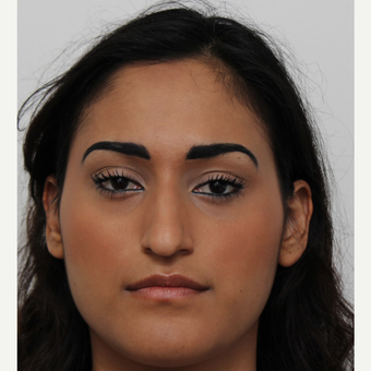 25-34 year old woman treated with Rhinoplasty before 3372311