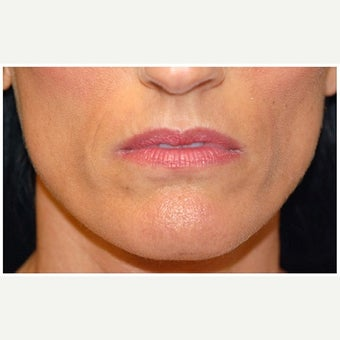 35-44 year old woman treated with Cheek Augmentation before 1569172