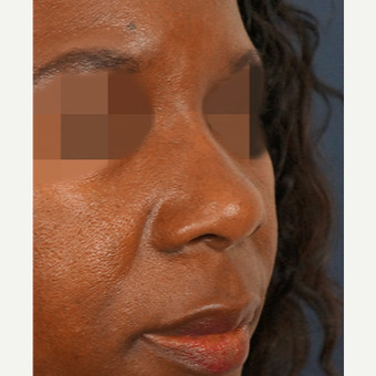 35-44 year old woman treated with Non Surgical Nose Job after 3244895