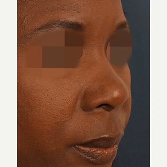 35-44 year old woman treated with Non Surgical Nose Job before 3244895