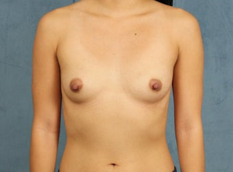 Asian Breast Augmentation before 1145369