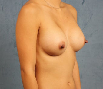 Asian Breast Augmentation 1145369
