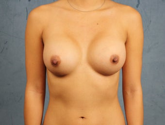 Asian Breast Augmentation after 1145369