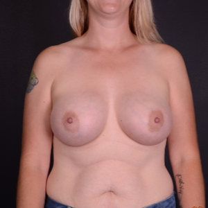 35-44 year old woman treated with Breast Augmentation after 3069982