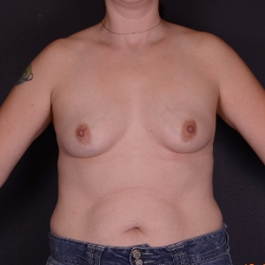 35-44 year old woman treated with Breast Augmentation before 3069982