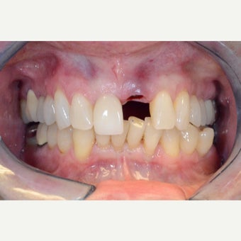 Dental Implant to replace broken front tooth before 2498054