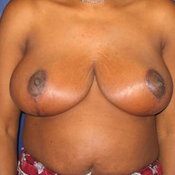 Breast Reduction after 1569662