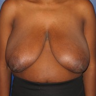 Breast Reduction before 1569662