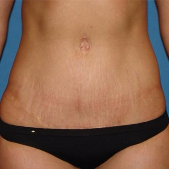 35-44 year old woman treated with Tummy Tuck after 3496743