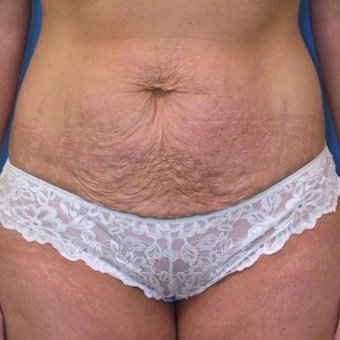 35-44 year old woman treated with Tummy Tuck before 3496743