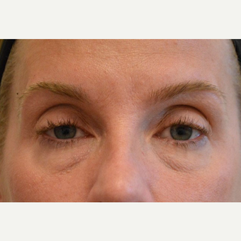 35-44 year old woman treated with Eyelid Surgery before 3608879