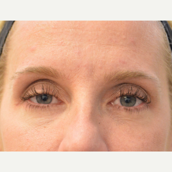 35-44 year old woman treated with Eyelid Surgery after 3608879