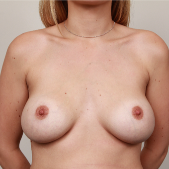 25-34 year old woman treated with Breast Implants before 3075227