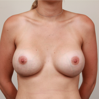 25-34 year old woman treated with Breast Implants after 3075227