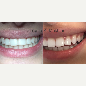 18-24 year old woman treated with Teeth Whitening before 3364352