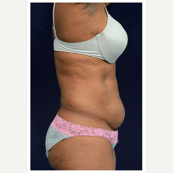 45-54 year old woman treated with Tummy Tuck before 3076177