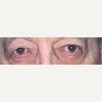 45-54 year old woman treated with Eyelid Surgery before 3582952
