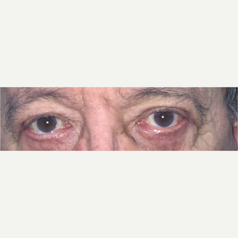 45-54 year old woman treated with Eyelid Surgery after 3582952