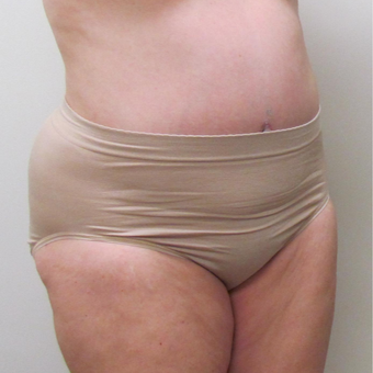 Liposuction for this 52 Year Old Woman after 3289246