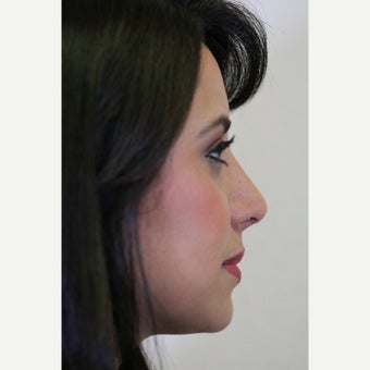 25-34 year old woman treated with Revision Rhinoplasty after 2828674