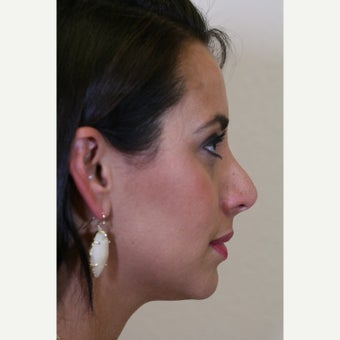 25-34 year old woman treated with Revision Rhinoplasty before 2828674