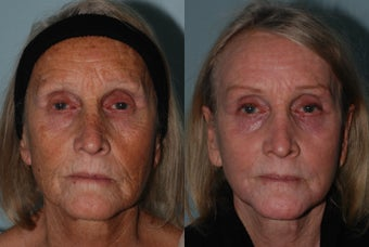 Treatment of aging and sun damage with laser resurfacing, before filler