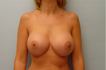 Breast Implants: 40-Year-Old Female after 1034605